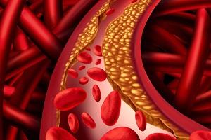 Cholestérol - Spiruline